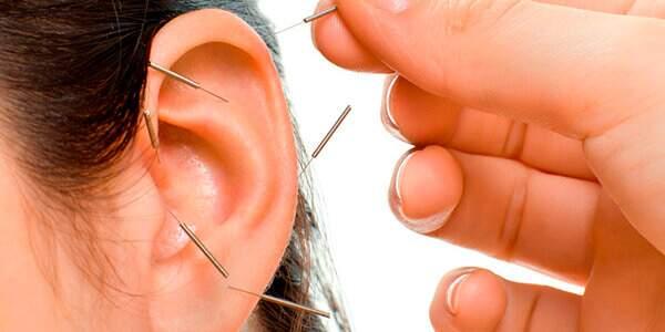 acupuntura auricular pontos